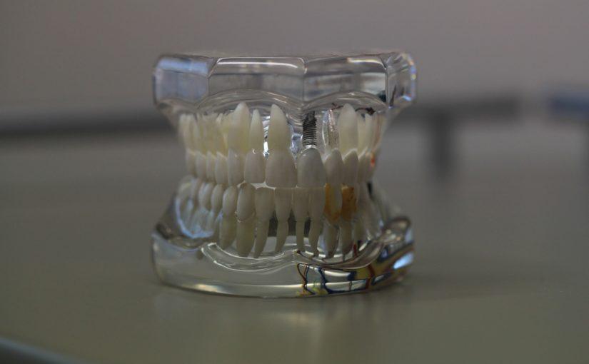 Zła metoda żywienia się to większe ubytki w jamie ustnej a dodatkowo ich zgubę